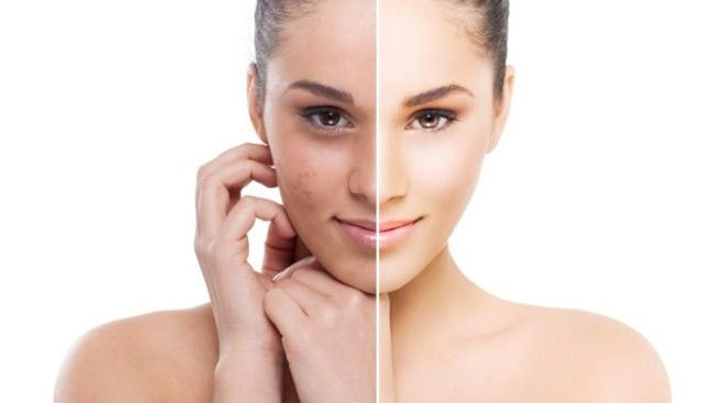3 Best of Face Care Tips With a Simple and Easy Way That You Can Do at Home!