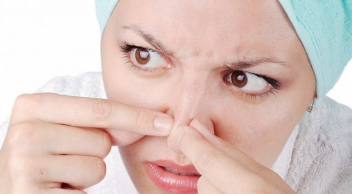 tips how to get rid of blackheads